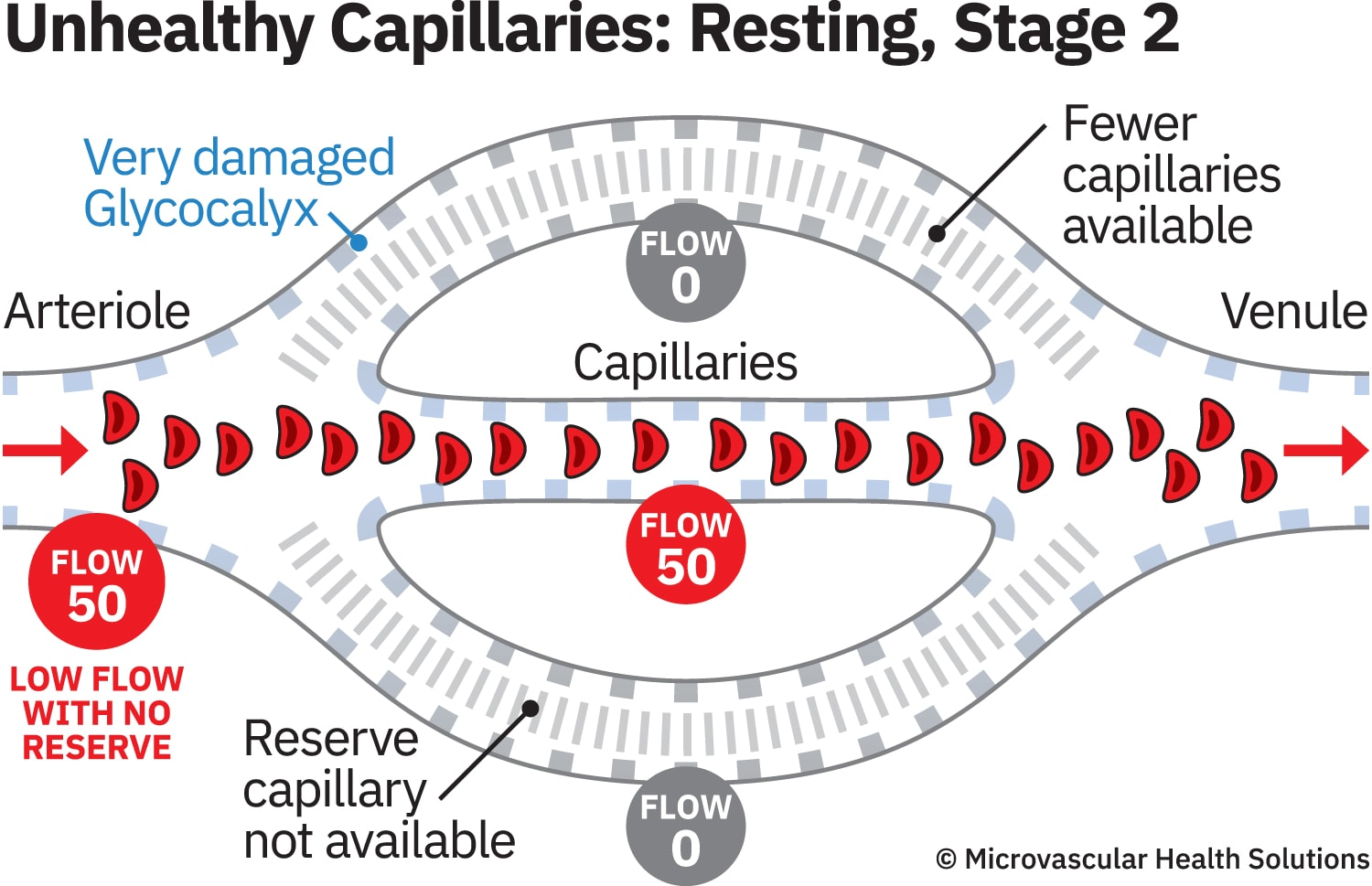 cap-unhealthy-resting-stage2-MHS-1500